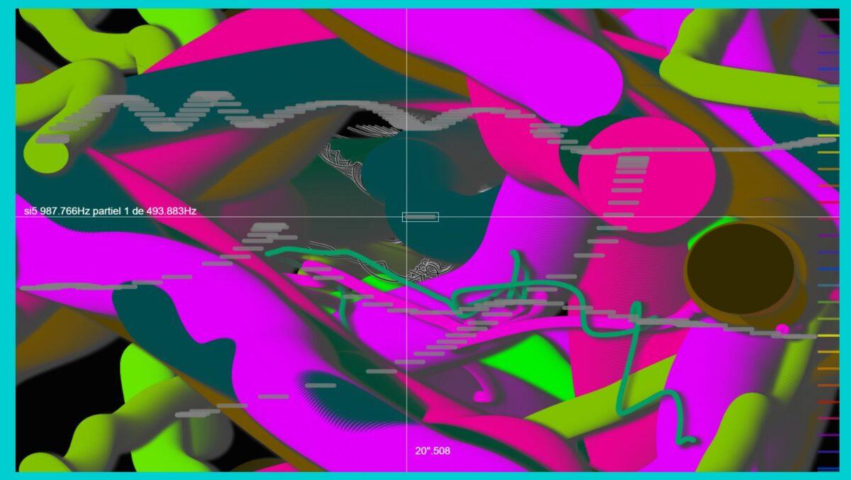 Sonographe parallèle